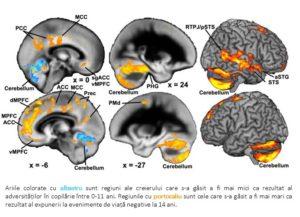 Imagine RMN creier adolescent